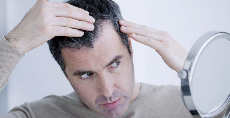 Hábitos que favorecen la caída del pelo