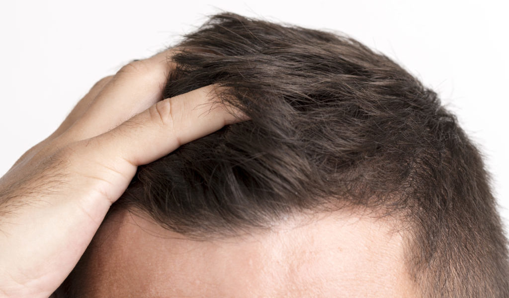 Escala Hamilton-Norwood para medir la alopecia androgénica masculina